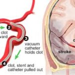 Mechanical Thrombectomy – new treatment for severe cases of stroke
